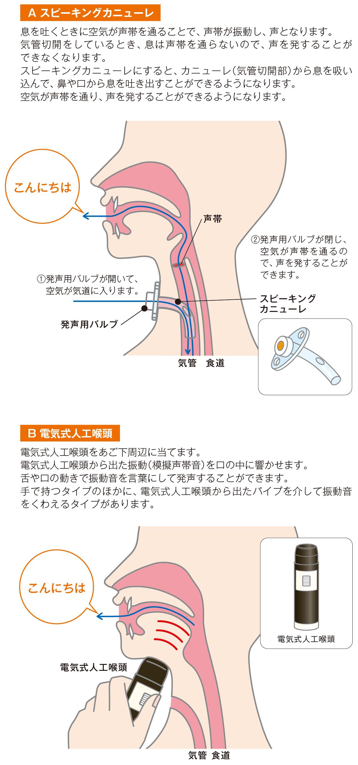 喉頭 電気 式 人工
